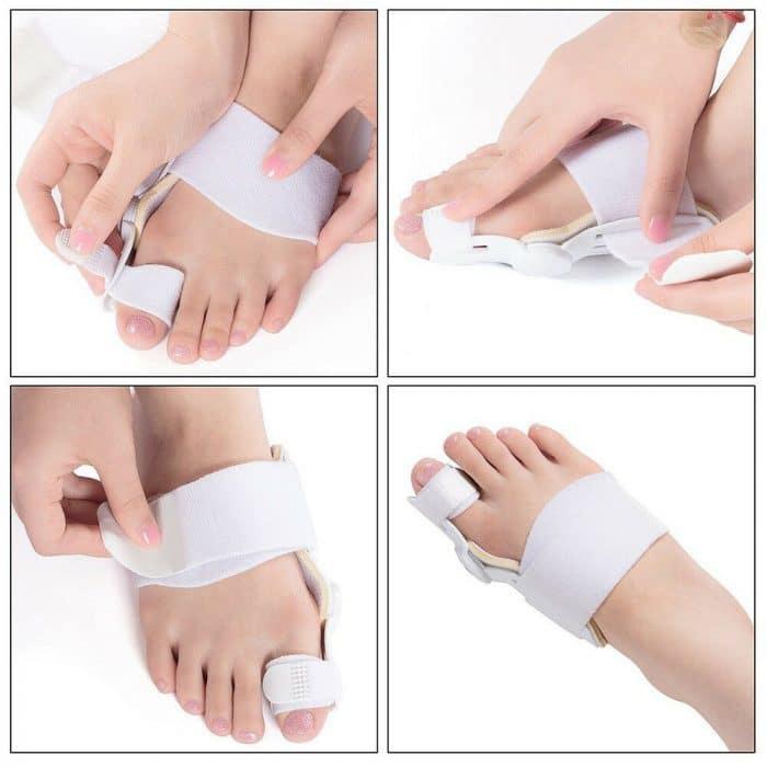 Bunion-Hammer-Toe-Splint-Straightener_IMG4