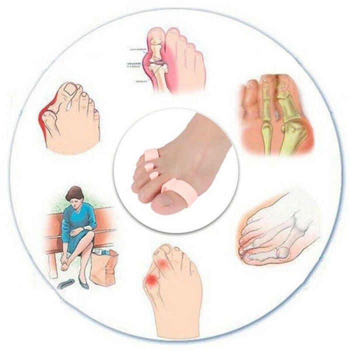 Orthopedic-Bunion-Corrector_IMG2
