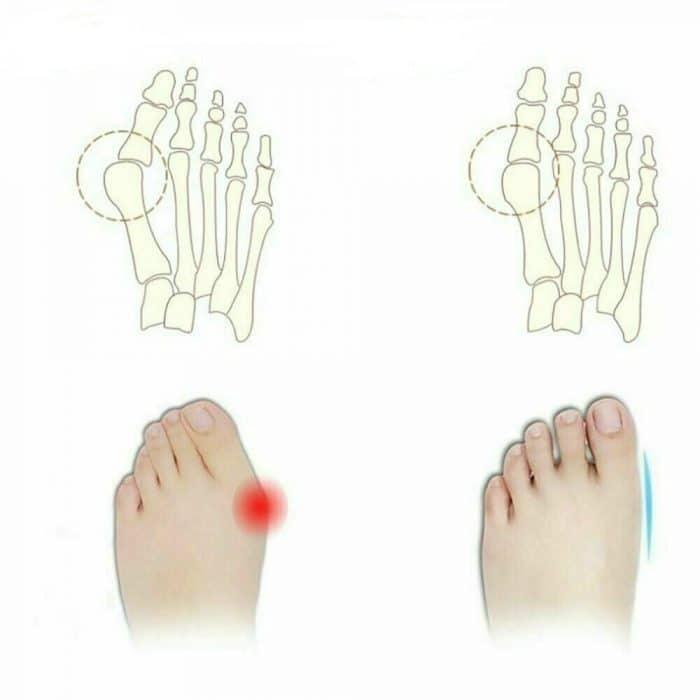 Orthopedic-Bunion-Corrector_IMG3